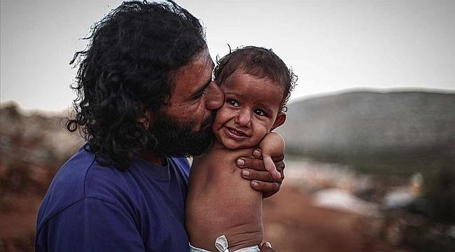 Uzuvları olmayan İdlibli Muhammed bebeğe yardım eli