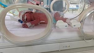 Çift rahimli kadın'ın çifte bebek mutluluğu